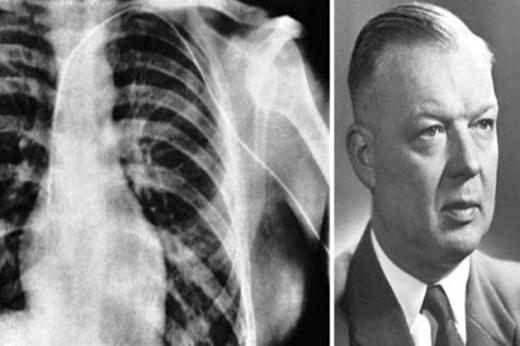 Với thí nghiệm gây thót tim này, bác sĩForssmann đã giànhmột giải Nobel. (Ảnh: Internet)