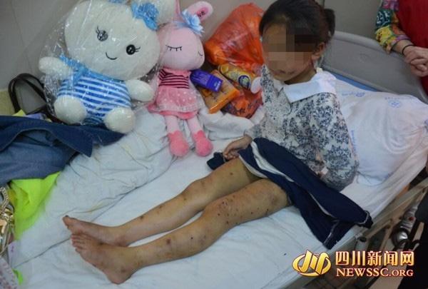 Bé gái đáng thương bị mẹ đánh đập dã man