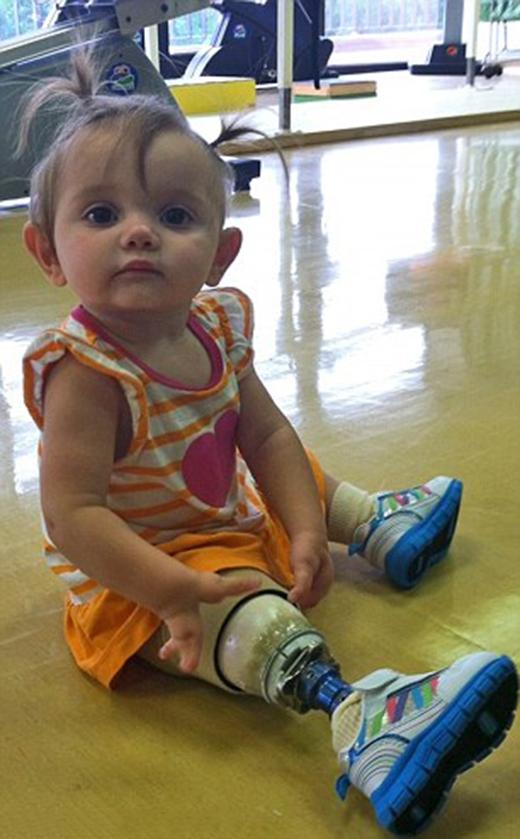 Ba mẹ cô bé quyết định lắp chân giả để em có cuộc sống bình thường như bao người. (Ảnh: Internet)