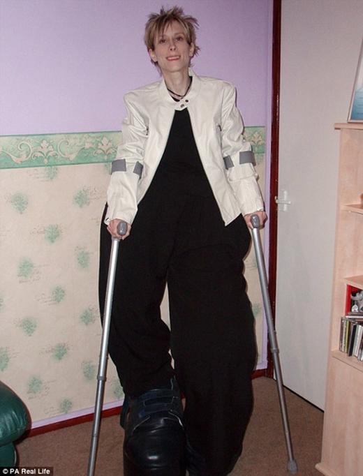 Người phụ nữ có đôi chân khổng lồ nặng hơn 107kg