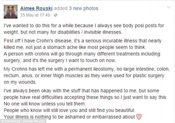 Bài viết truyền cảm hứng của Aimee. (Ảnh: Chụp FB)