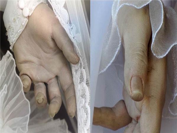 Bàn tay lạnhcủaLa Pascualita. (Ảnh: Internet)