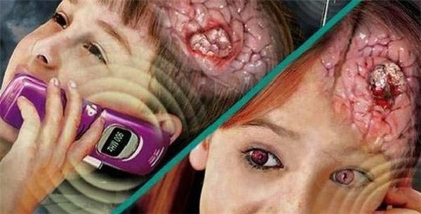 300 triệu người đã mắc hội chứng này khi dùng điện thoại quá nhiều