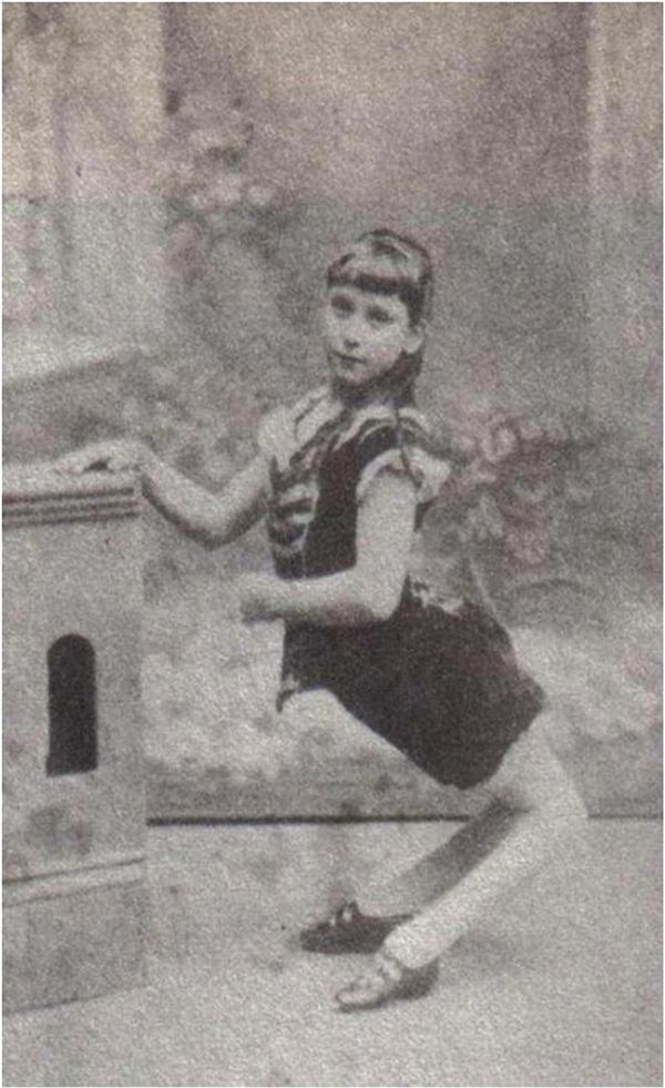 Hai đầu gối của cô gái lạc đàkhông phát triển theo hướng bình thường mà bị uốn cong về phía sau.