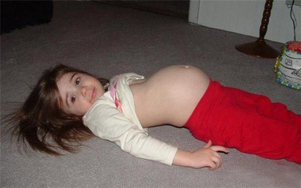 """Hình ảnh em bé khi mang thai """"3 con rắn"""". (Ảnh: Internet)"""