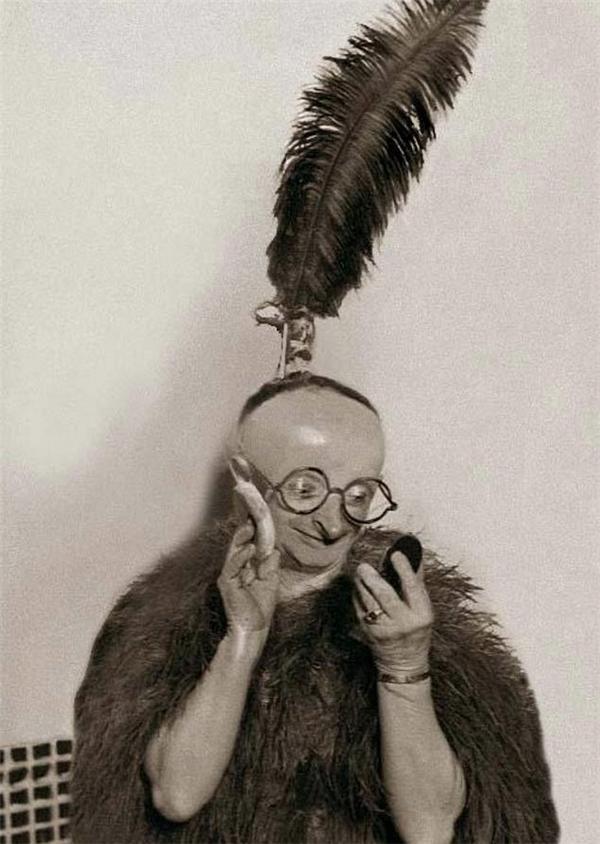 """Minniebị rối loạn tâm lý kèm thêm rụng tóc và mù lòa, còn gọi là hộichứng """"người lùn đầu chim""""."""