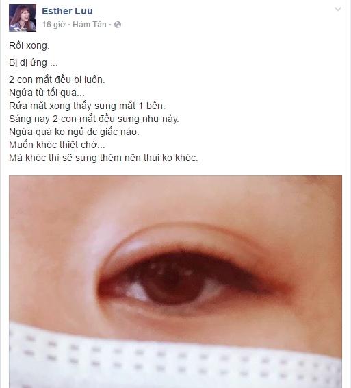 Hari Won thông báo mắt sưng khiếnfan hết sứclo lắng cho tình trạng sức khỏe của người đẹp.