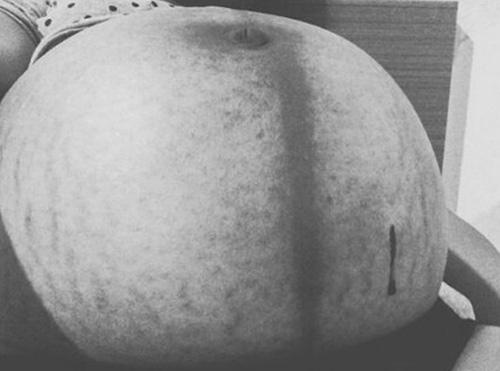 Nghẹn ngào với những hình ảnh về vết rạn da trên cơ thể mẹ