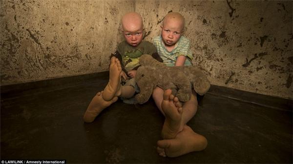Những em nhỏ bị bạch tạng là đối tượng của các tay săn người.