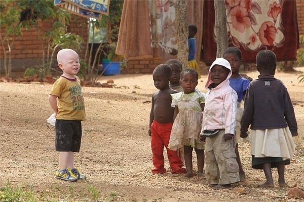 Thảm cảnh những đứa trẻ bạch tạng châu Phi bị giết hại để lấy bộ phận cơ thể làm tà thuật