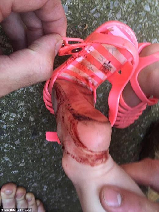 Ngay lập tức, mẹ của cô bé cởi ngay đôi giày đó ra. (Ảnh: Internet)
