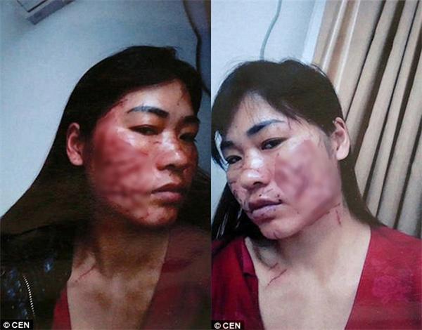 Cô Jing hiện đang sống ở Đặng Châu, Trung Quốc, cùng 2 đứa con, 16 và 12 tuổi, với chồng cũ.
