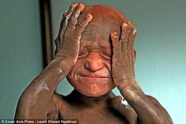 Chứng bệnh vô cùng hiếm gặp khiến làn da của cậu bé Ramesh biến dạng.