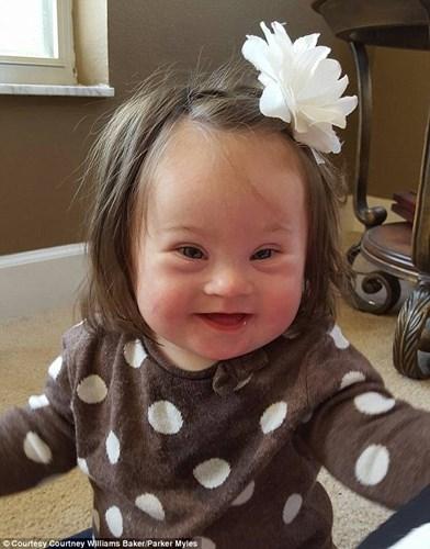 Nụ cười của bé Emersy đã chạm đến trái tim nhiều người. (Ảnh: Internet)