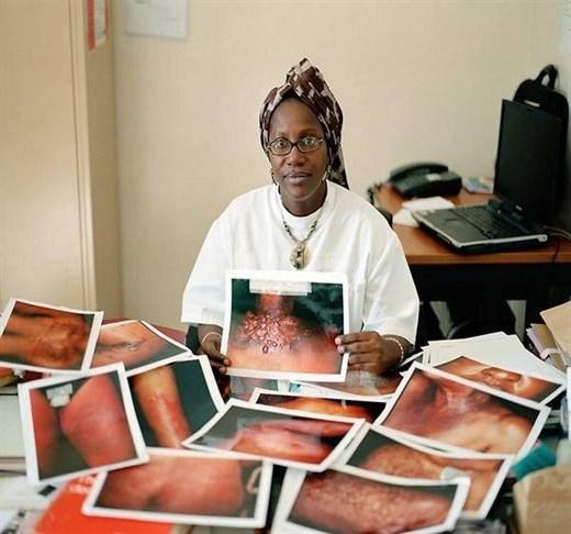 Bác sĩ da liễu tại bệnh viện Dakar đưa ra những bức ảnhnạn nhân dùng tẩy trắng. Bà cho hay hầu hết họ đều không ý thức được về việc phải là chất độc hại mới có thể tẩy trắng da.