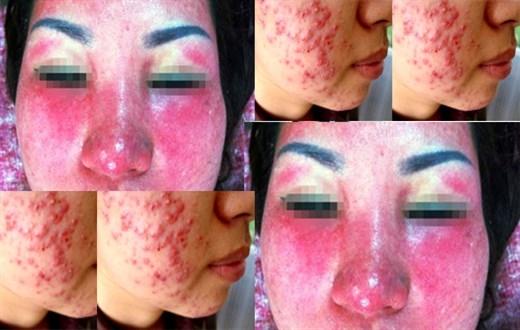 Tại Việt Nam cũng có hàng triệu làn da phải gánh chịu hậu quả do kem tẩy trắng. (Ảnh minh họa)