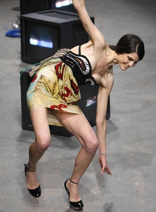 """Những màn """"vồ ếch"""" khiến khán giả cười ngất trên sàn diễn quốc tế"""