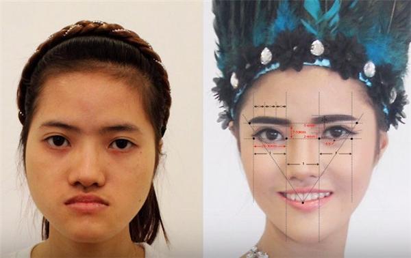 Hiêncần phải chịu một ca phẫu thuật lớn để thay đổi vẻ ngoài của mình.(Ảnh: Cắt clip)