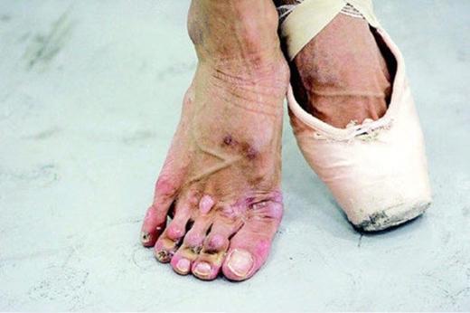 Khi chân bạn càng lúc càng nặng hơn, nó sẽ như thế này.(Ảnh: Internet)