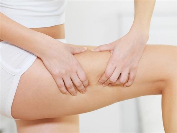 Hiện tượng da sần vỏ cam do cơ thể tích tụ quá nhiều Cellulite. (Ảnh: Internet)