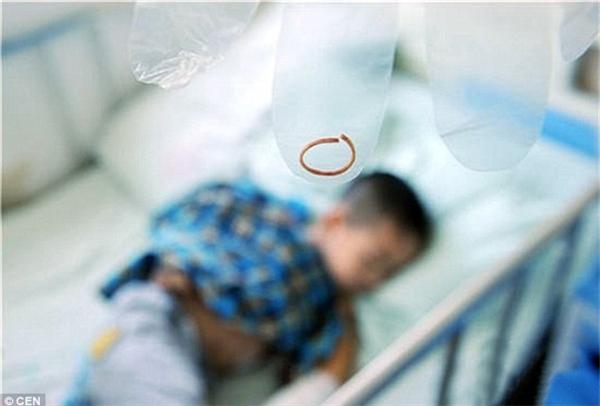 Cảnh báo: Cậu bé 4 tuổi suýt phải cắt tay vì một chiếc vòng chun