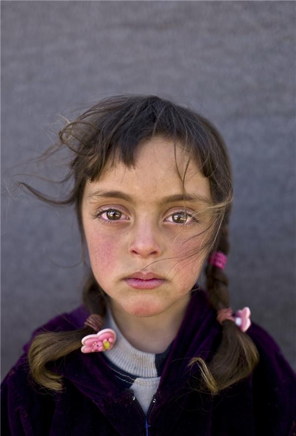Bé gái Zahra Mahmoud, 5 tuổi người Syria, sống cùng gia đình trong trại tị nạn ở Mafraq, Jordan. (Ảnh: Internet)