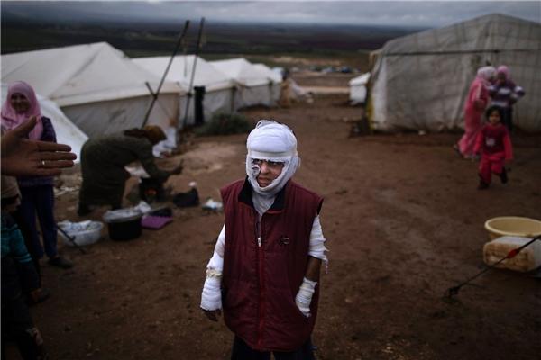 Bé trai Abdullah Ahmed, 10 tuổi, bị bỏng trong một cuộc không kích ở Atmeh, Syria. Nhà cửa bị phá hủy khiến nhiều gia đình phải sống trong các khu lều tạm ở chính quê nhà. (Ảnh: AP)