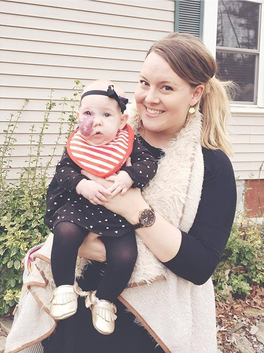 Câu chuyện cảm động về một người mẹ có con gái nổi u máu trên mặt