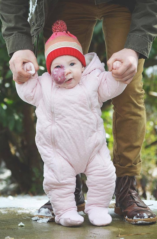 Cả hai vợ chồng không còn muốn nhắc đến vết bớt nữa mà chỉ muốn xem con gái mình có ngoại hình như bao đứa trẻ bình thường khác.