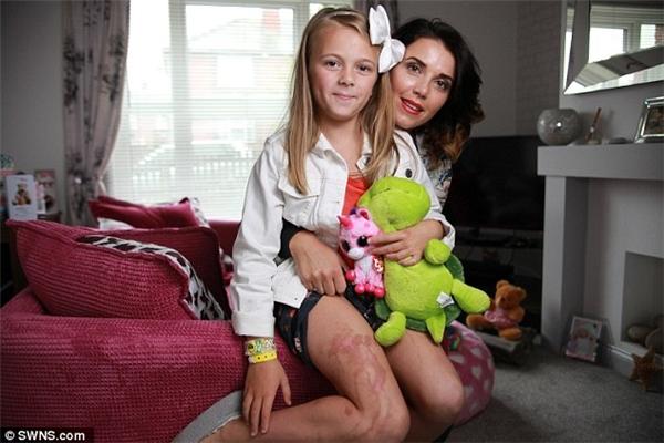 Hai mẹ con cô bé với phần da chân đã được các bác sĩ phun ẩm và điều trị sau chuyến đi biển.