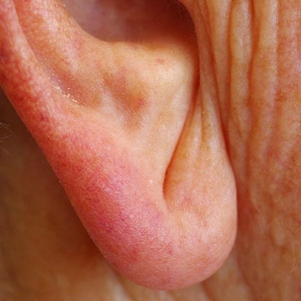 Nguy cơ mắc bệnh động mạch vành khi có lằn chéo ở dái tai. (Ảnh: Internet)