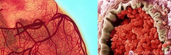 5. Đây là hình ảnh chụp bằng kính hiển vi của một túi động mạch, nó cho thấy tình trạng khá nghiêm trọng, vì các tế bào máu trong động mạch bị vỡ.