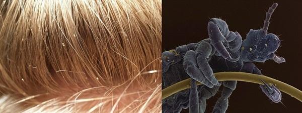 14. Cận cảnh hình ảnh con chấy bám chặt trên sợi tóc, trống nó như một con quái vật khi được phóng to lên.