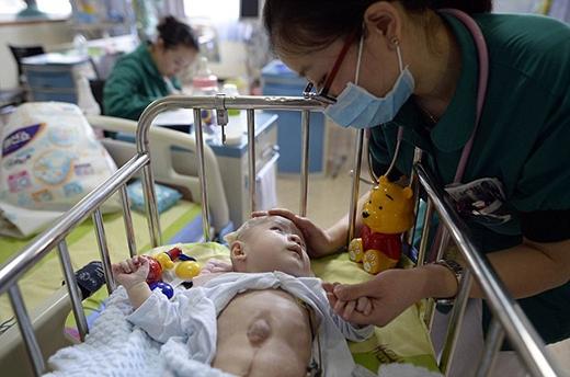 Cậu bé phải trải qua nhiều cuộc đại phẫu mới có hy vọng sống sót. (Ảnh: Internet)