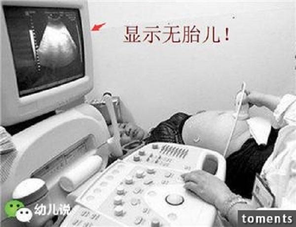 Kết quả siêu âm cho thấy tử cung cô nhỏ,bụng trống rỗng và bên ngoài có một lớp mỡ dày cộm.