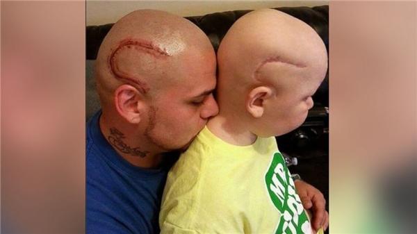 Để động viên con, anh Josh đã xăm mộthình xăm tương tự vết sẹo của con. (Ảnh: Internet)