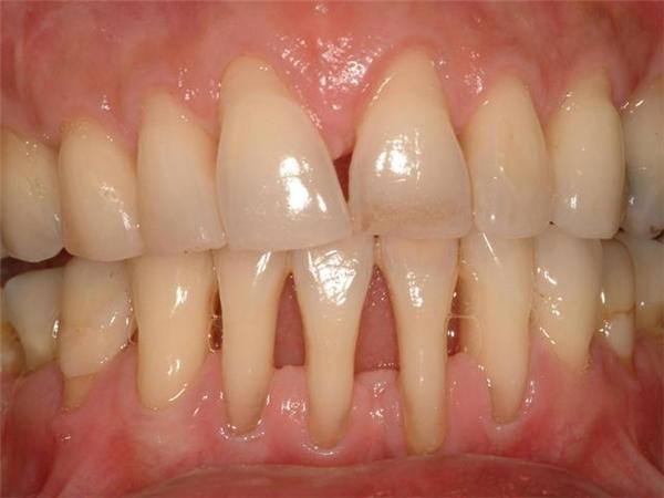 Bệnhgây mất thẩm mỹ răng và hôi miệng. (Ảnh: Internet)
