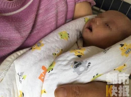Em bé mang trong mình một bào thai được ghi nhận tại Tây An, Thiểm Tây, phía Tây Bắc Trung Quốc.