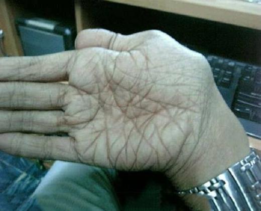 Khi thầy bói cũng hoang mang với bàn tay chi chít đường chỉ tay thế này!