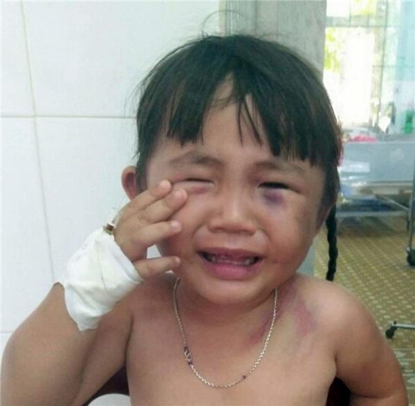 Phẫn nộ cảnh bé gái 3 tuổi bị người cha hờ đánh đập tàn nhẫn