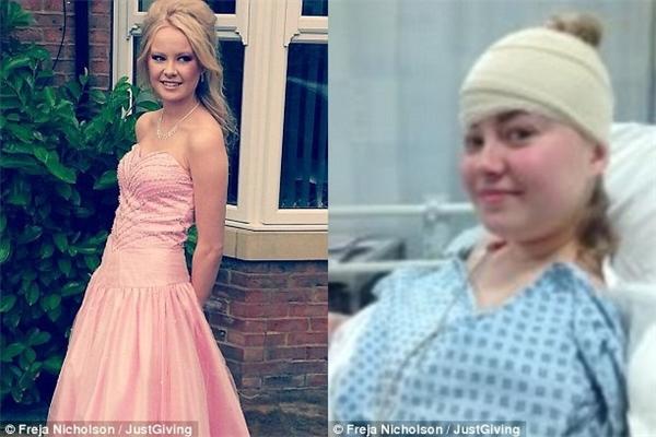 Sau khi phẫu thuật đốt bỏ nốt ruồi, cuộc sống của Freja trở lại như trước đây. Nhưng chỉ 2 năm sau, cô gái được chẩn đoán mắc bệnh ung thư da.(Ảnh: JustGiving)
