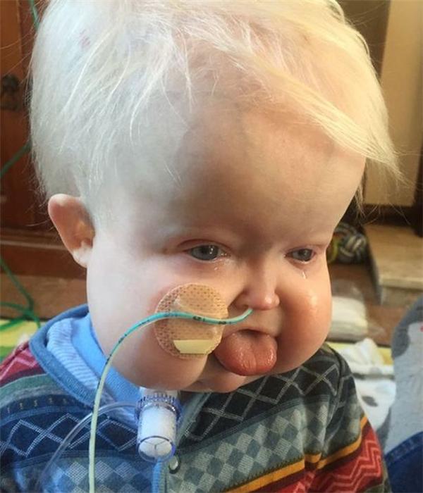 Bệnh hiếm chỉ 150 ca/7,4 tỷ người đã cướp đi một cậu bé 2 tuổi