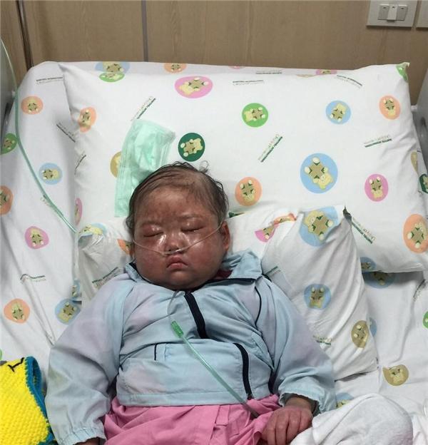Cô bémắc bệnh Bạch cầu nguyên bào cấp tính, cơ hội để chữa khỏi căn bệnhlà 70-85%.