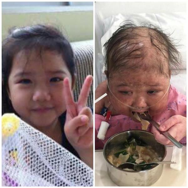 Tình hình cô béhiện tạiđang rất yếu và có thể chết bất cứ lúc nào nếu không kịp thời điều trị.