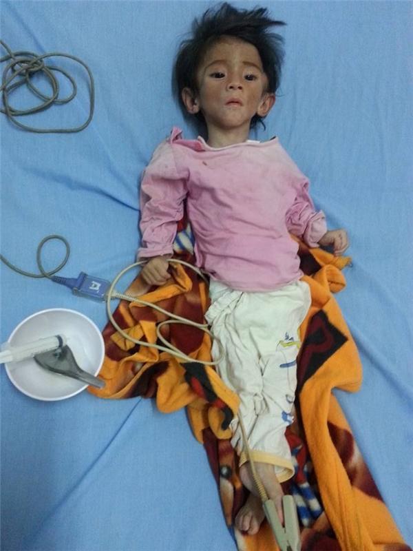 Cháu Nhi đã được đưa đến bệnh viện điều trị vào chiều ngày 28/6.