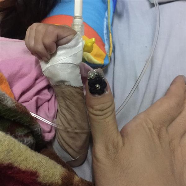 Cánh tay của cháu Nhi chỉ to ngang ngón tay cái của một người trưởng thành.