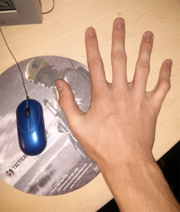 Khi chuột máy tính chỉ nhỏ bằng 1/3 lòng bàn tay bạn.(Ảnh: Internet)