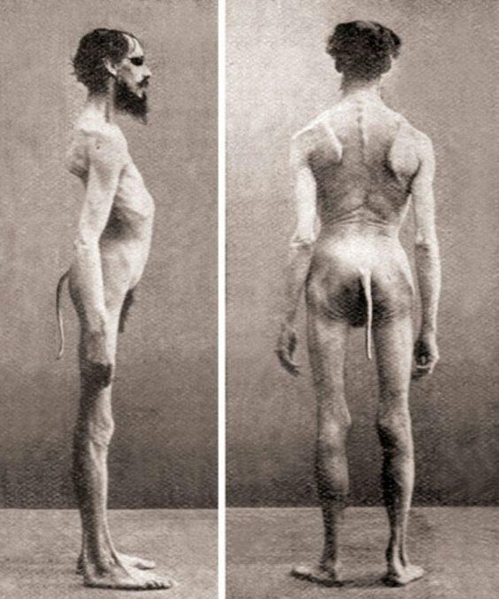 Người đàn ông Ấn Độ này có một chiếc đuôi.... (Ảnh: Internet)