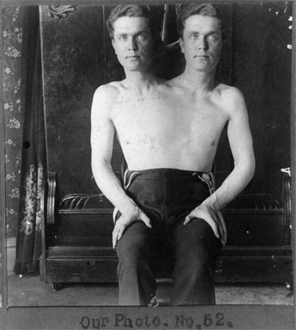 Hai anh em sinh đôi dính liền nhau, ai cũng tưởng đây là một người đàn ông có hai đầu. (Ảnh: Internet)