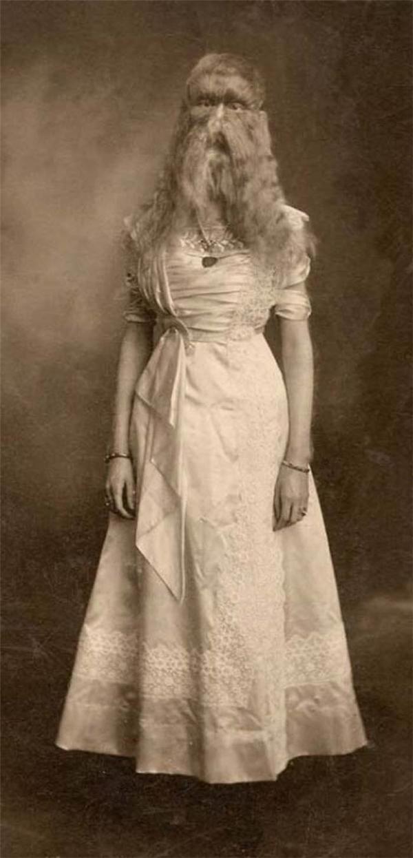 """""""Người phụ nữ sói""""Alice E. Doherty đến từ MInnesota. (Ảnh: Internet)"""
